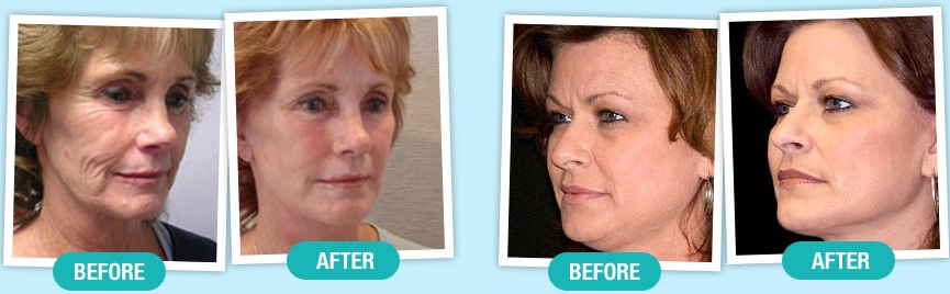 MIRACLE PHYTOCERAMIDES Trial
