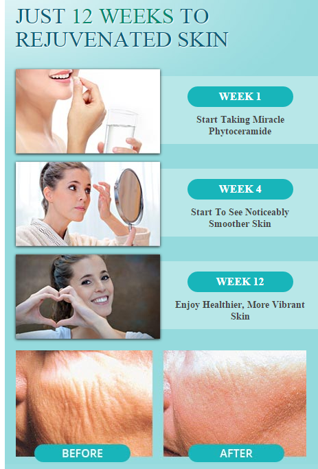 TRY MIRACLE PHYTOCERAMIDES